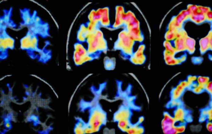 Alzheimer nuevos estudios