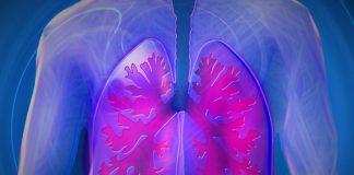 Consenso de Hipertensión Pulmonar